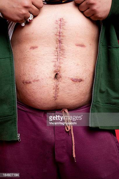 one male showing his stomach wounds scar stitches after operation - medical stitches stock photos and pictures