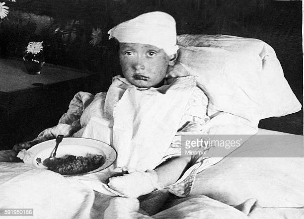 One of the injured school children from the Upper North Street School Popular London which was stuck by a bomb dropped by a German Gotha bomber...