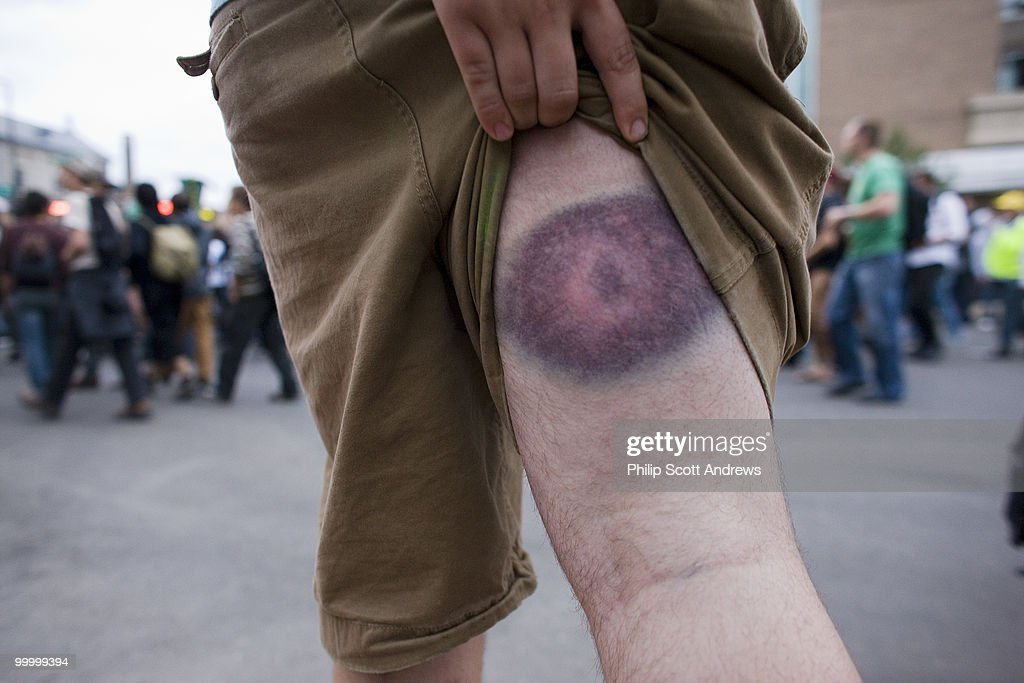 One person shows the result of a rubber bullet that hit him a day earlier.