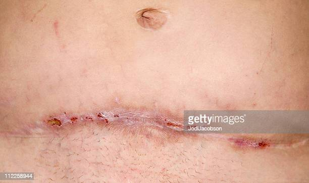 mrsa one year later - medical stitches stock photos and pictures