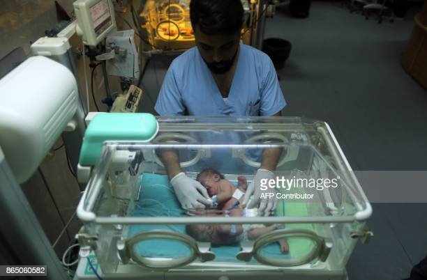 Onedayold Palestinian conjoined twins lie in an incubator at the nursery on October 22 2017 at alShifa Hospital in Gaza City / AFP PHOTO / MAHMUD HAMS