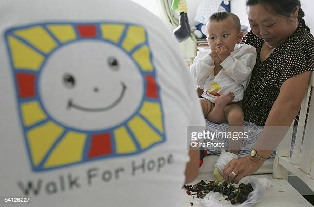 Oneyearold Wei Wei a young child with three legs and both female male reproductive organs eats grape after undergoing a further examination at the...