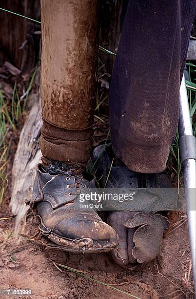 CONTENT] Only having one leg does not stop this Angolan landmine victim from continuing to farm his land A closeup of his prosthetic leg and real...