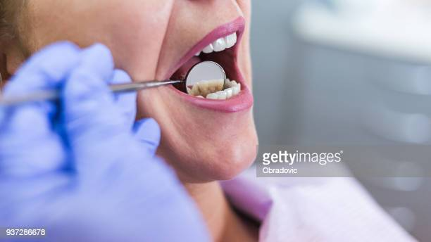 open female mouth during oral checkup at the dentist. selective - dental equipment stock pictures, royalty-free photos & images