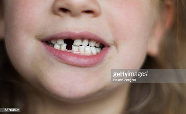 open mouth showing with 2 missing teeth - girls open mouth stock-fotos und bilder