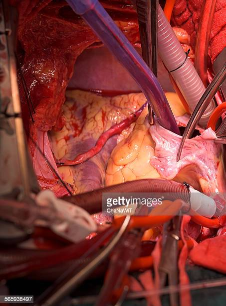 open right atrium - heart bypass surgery stock pictures, royalty-free photos & images
