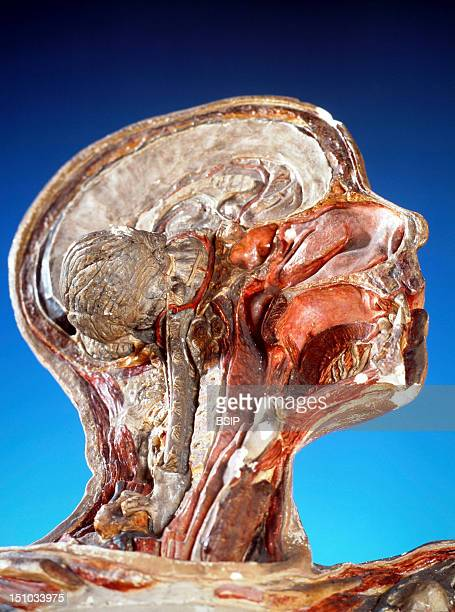Opening Of The Cervical Rachis Vertebral Artery And Basillar Artery Sagittal Section Of The Nasal Fossae Buccal Cavities And Pharynx Copies Of...