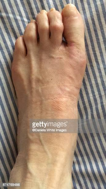 operated foot - hallux valgus photos et images de collection