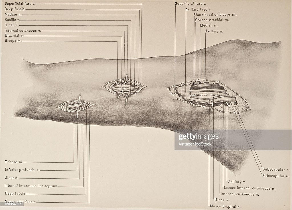 Operations For Exposure Of Third Part, Axillary Artery & Large ...