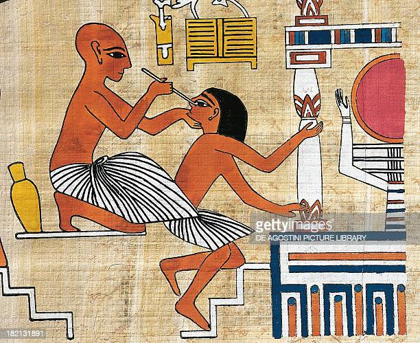 Ophthalmologist treating a patient papyrus reconstruction of a fresco from the Theban tomb of Ipi originally dating back to the Dynasty XIX Egyptian...
