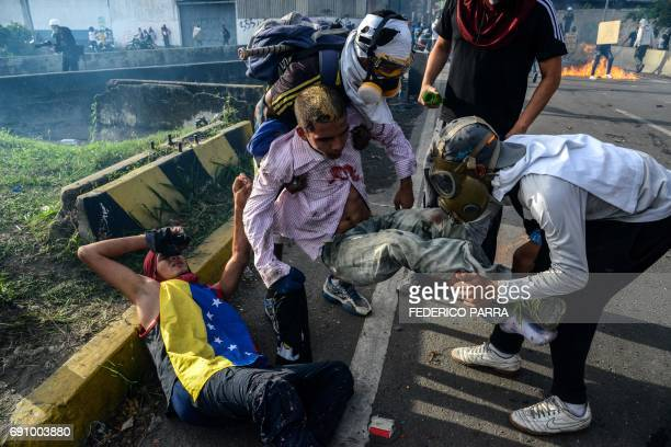TOPSHOT Opposition demonstrators help two injured fellow demonstrators during clashes with riot police on May 31 2017 Venezuelan authorities on...
