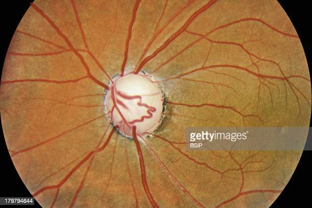 Optic Atrophy Optical Atrophy Following Vascular Trauma