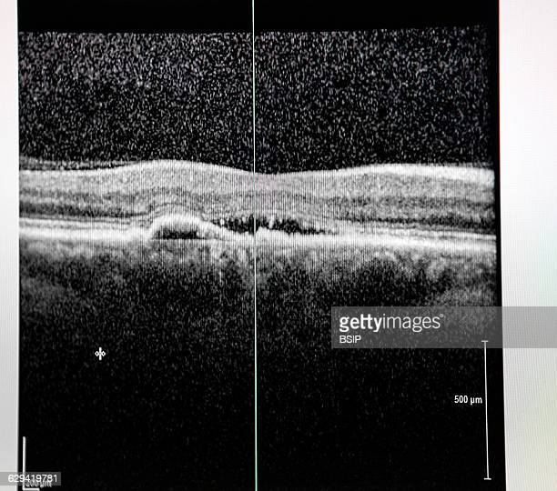 Optical coherence tomography of a patient show has a retinal edema