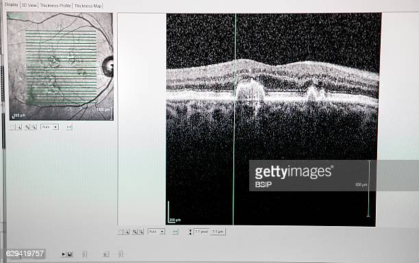 Optical coherence tomography showing signs of macular degeneration