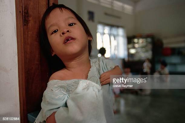 orphaned vietnamese child with deformity - agent orange 個照片及圖片檔