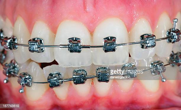 orthodontic treatment - gingivitis stockfoto's en -beelden