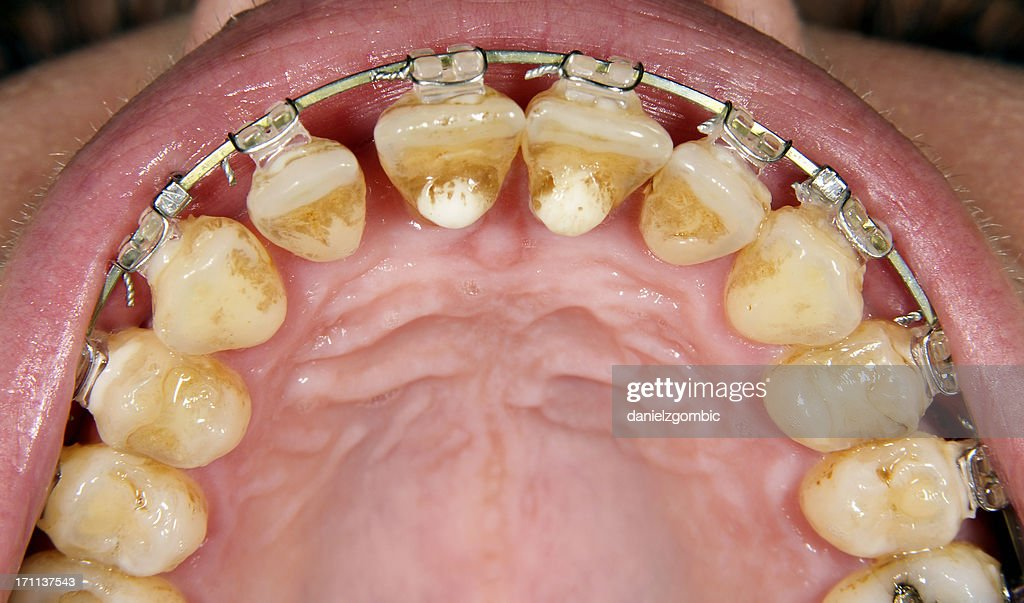 Orthodontic Treatment With Gingival Recesion : Stock Photo