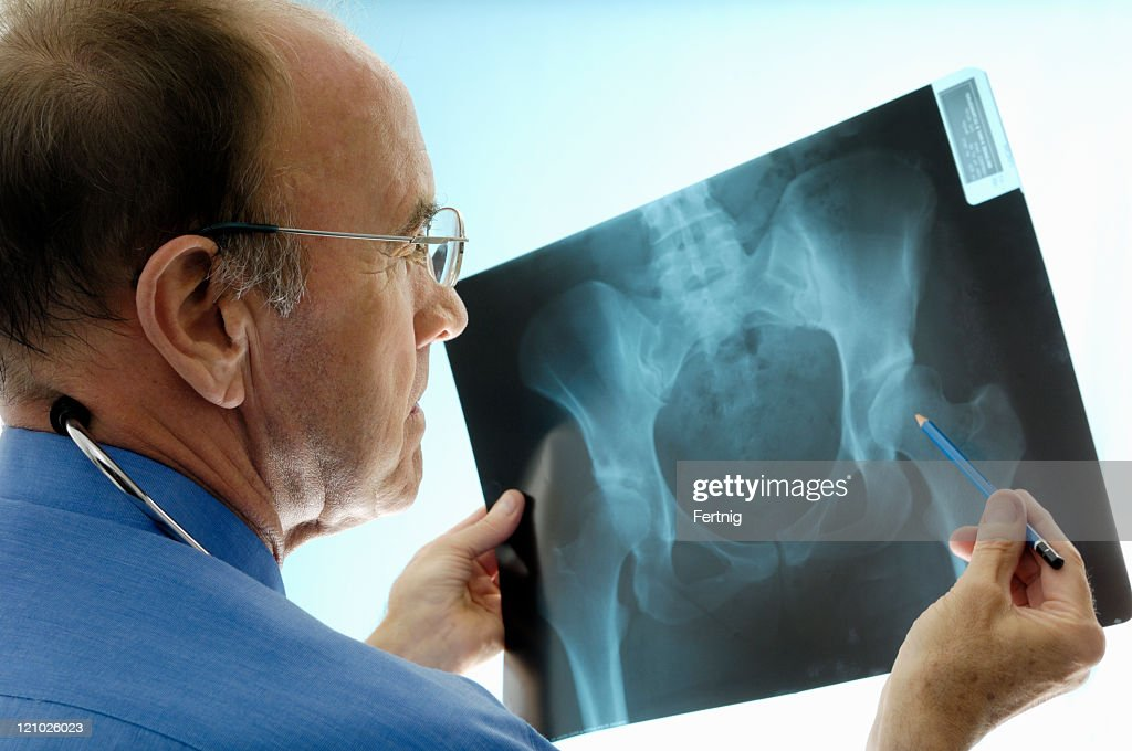Orthopaedic surgeon consulting pelvic x-rays for a hip replacement. : Stock Photo