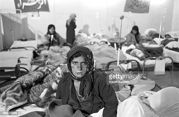 A female Iraqi Kurd sits on a makeshift hospital bed in Oshnavieh Iran after having fled a chemical gas attack in noerthern Iraq 5th August 1988...