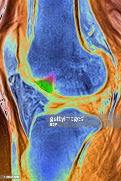 Osseous edema of the knee Subcortical lesion of the condyle saggital crosssection MRI scan of the knee