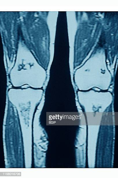 Osteoarthritis of the knee Wear then destruction of cartilage in various areas of the knee joint Frontal MRI scan of the knees