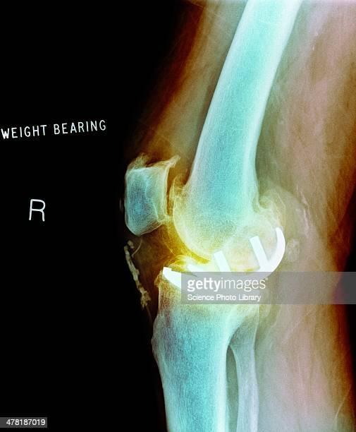 Osteoarthritis of the knee, X-ray