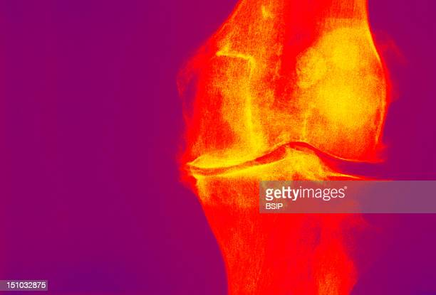 Osteoarthritis Or Degenerative Joint Disease Is A Pathological Alteration Of The Joint Cartilage Subsequent To Stress Osteoarthritis Is Particularly...