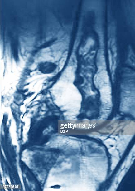 Osteonecrosis Of The Knee Rmn, Sagital MRI Image Of The Knee Shows A Femoral Infarction.