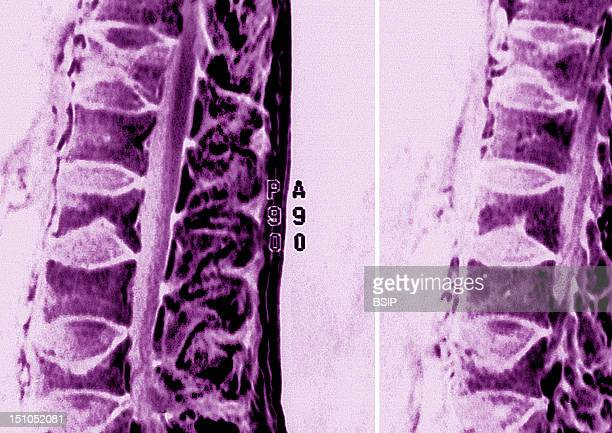 Osteoporosis Causes A Reduction In Bone Density A Decrease In Spongy Bone Tissue And A Thinning Of Cortical Bone Shown Here Collapse Of The Lumbar...