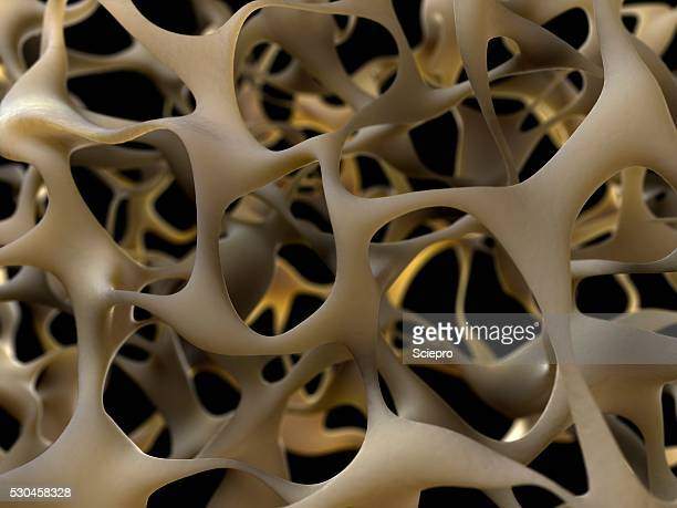 osteoporotic bone, artwork - osteoporosis stock photos and pictures