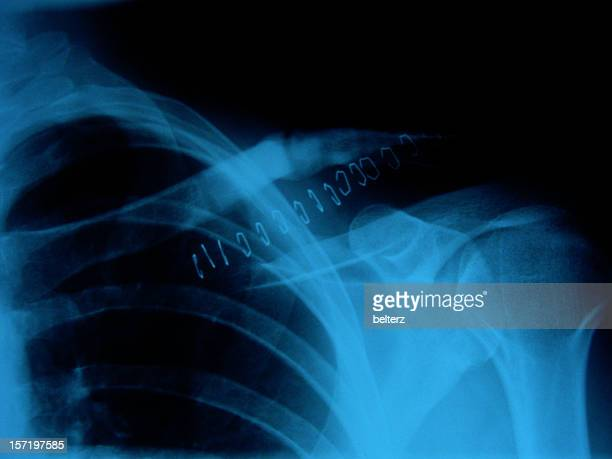 ouch x-ray - suture stock photos and pictures