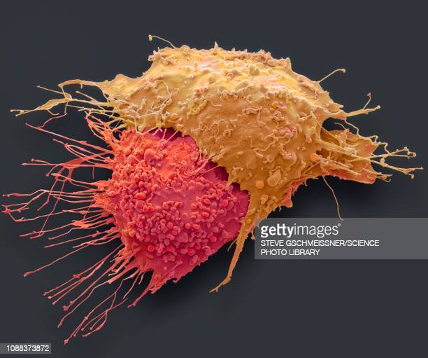ovarian cancer cells, sem - sem stockfoto's en -beelden