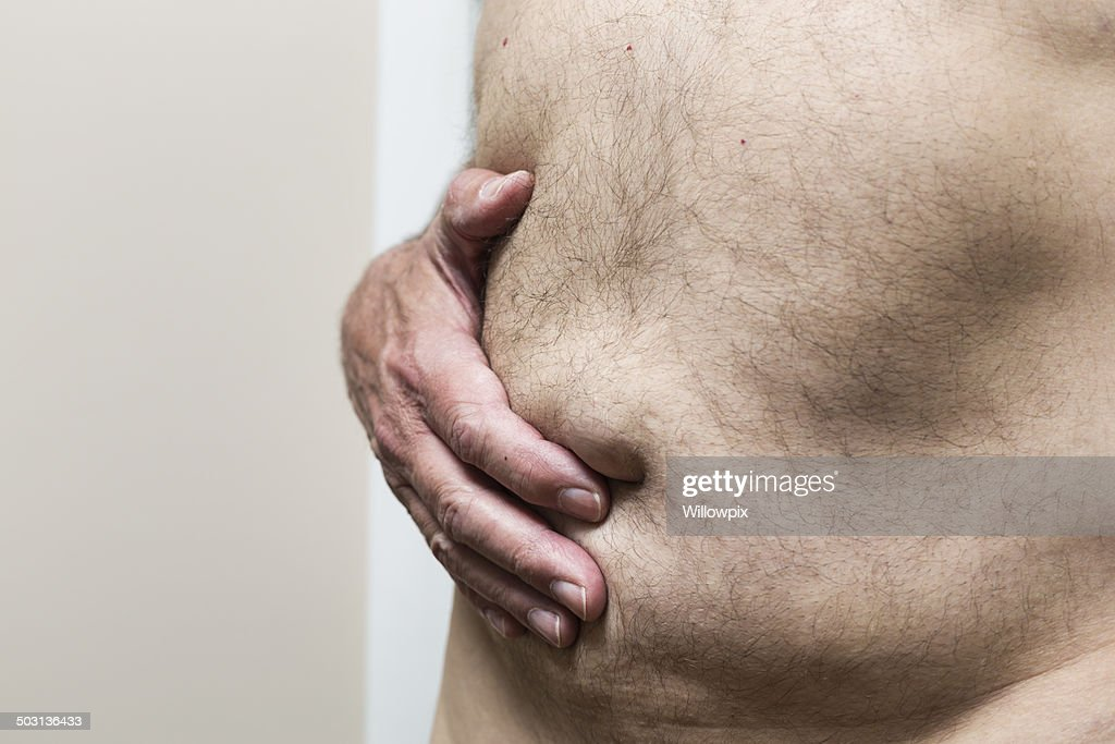 Overweight Man Holding Abdomen With Umbilical Hernia Stock Photo