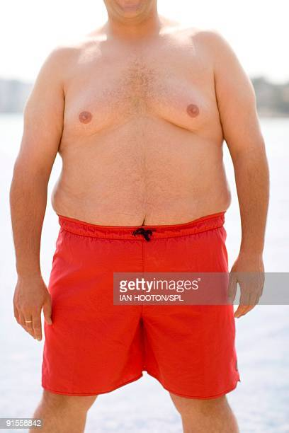 Overweight man wearing swimming trunks