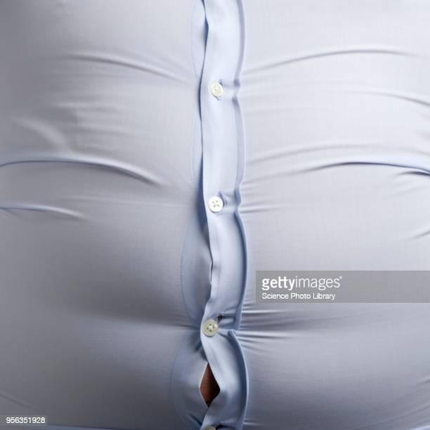 overweight man with bulging shirt buttons - gras photos et images de collection