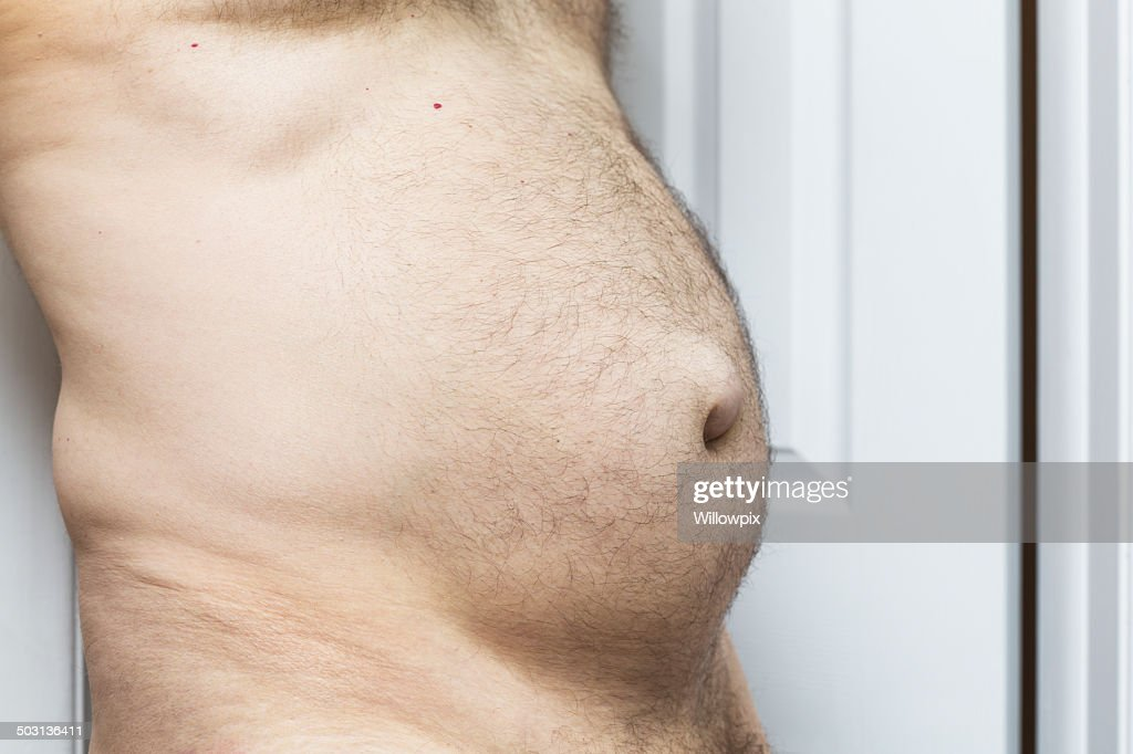 Hernia Stock Photos and Pictures | Getty Images