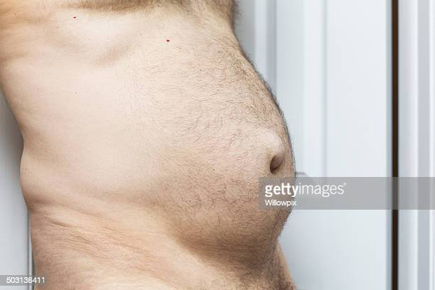 overweight man with umbilical hernia - liesbreuk stockfoto's en -beelden