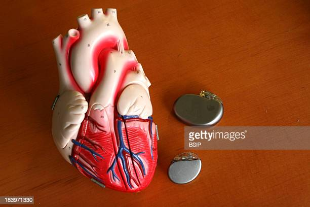 Pacemaker The University Hospital In Lille France Pacemaker And Heart Defibrillator