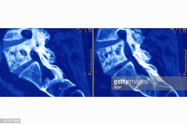 Paget's Disease Or Osteitis Deformans Is A Chronic Bone Disorder That Affects The Process By Which The Body Produces New Material To Keep Bones...