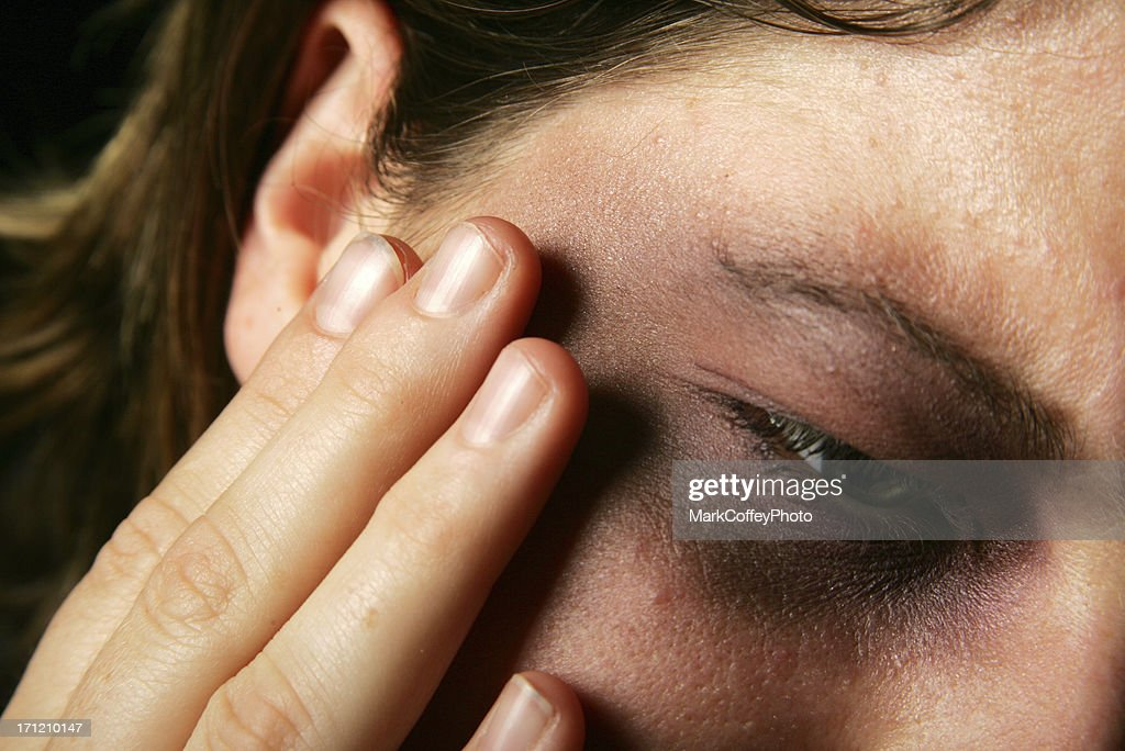 Painful bruised face and eye : Stock Photo