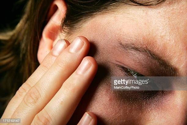 painful bruised face and eye - battered woman stock pictures, royalty-free photos & images
