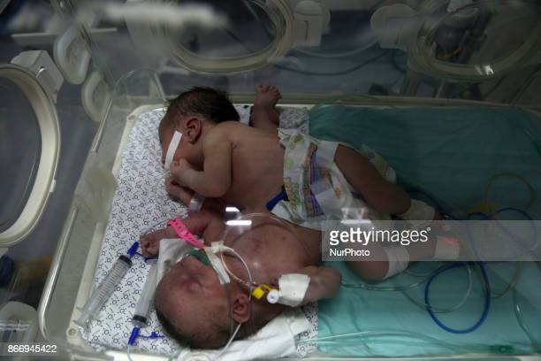 A pair of conjoined twin sisters born Saturday lie in an incubator at Shifa hospital in Gaza City Oct 26 2017 Dr Allam Abu Hamda a neonatal...