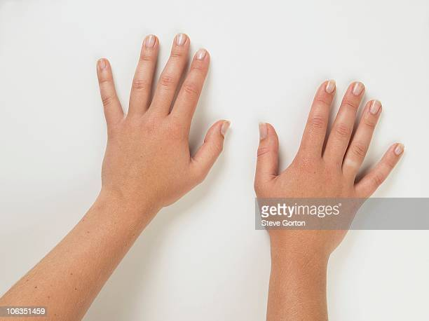Pair of tanned hands palms down showing pale skin on ring finger