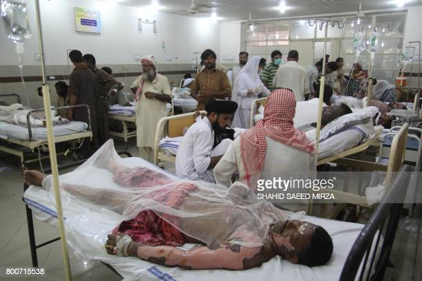 Pakistani burn victims are treated at a hospital in Bahawalpur on June 25 after oil tanker after caught fire following an accident on a highway near...