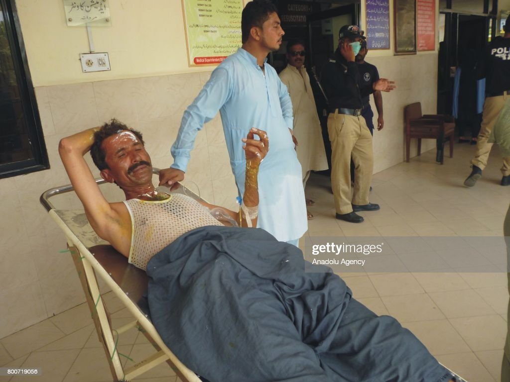A Pakistani man waits to receive treatment after an oil tanker catches fire and kills 123 people, at a hospital in Bahawalpur of Punjab province, in Pakistan on June 25, 2017. The incident occurred on Sunday morning as a large number of people gathered to collect petrol from the vehicle.