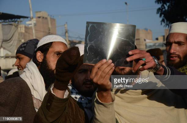 Pakistani people use an X-ray to view the total solar eclipse in Peshawar, Pakistan. During the celestial annular solar eclipse, the moon covers the...