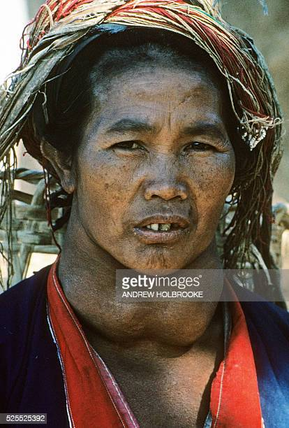 Palaung tribal woman with a Goiter usually a symptom of iodine deficiency