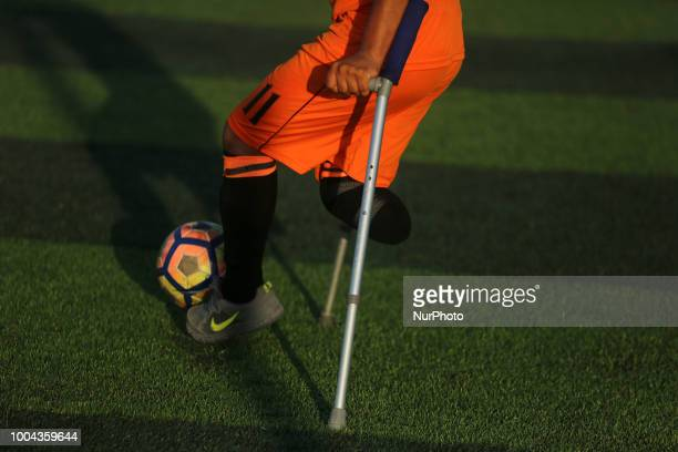 Palestinian amputee soccer players take part in a training session of their team at Municipality Stadium in Deir Al Balah in the central Gaza Strip...