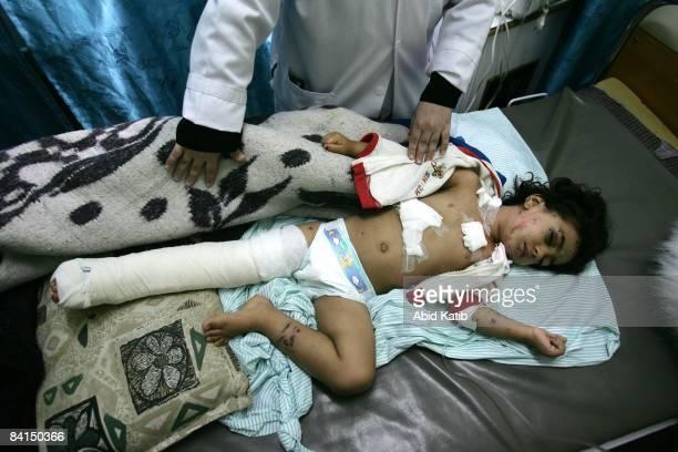 Palestinian child Amera Sharif Askari lies on a bed in the Kamal Adwan hospital on December 31 2008 in Beit Lahia northern Gaza Strip Amera was...