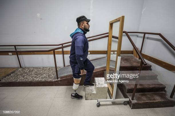 Palestinian disabled man who lost his leg in Israeli interventions during Great March of Return demonstrations are seen at Artificial Limbs and Polio...